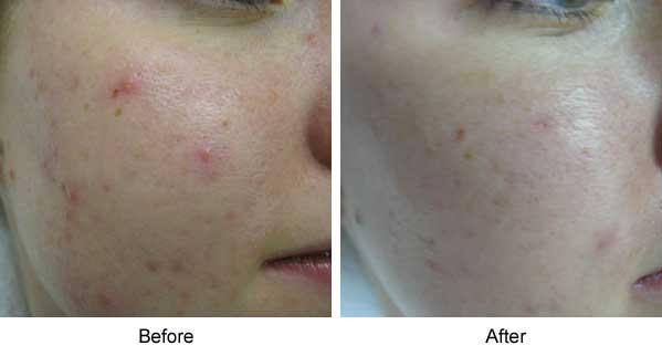 Treatment of Acne Vulgaris