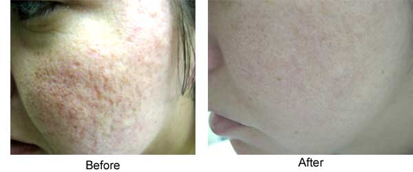 Acne and scar treatment