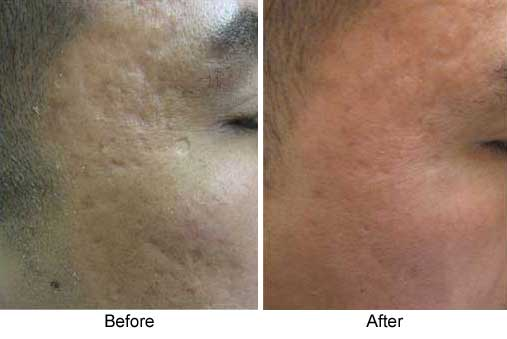 acne scars, male, right temple area