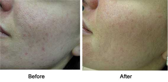 red acne scars, female, right cheek