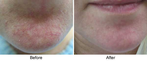 Rosacea: before, after