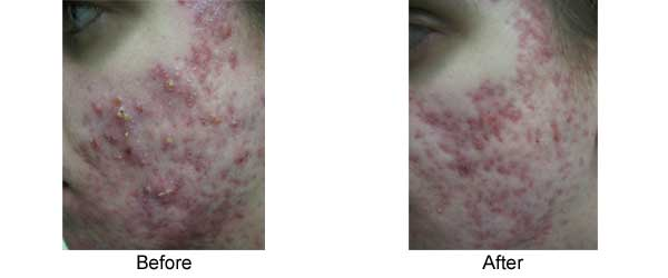 Acne 2 Isolaz Treatments