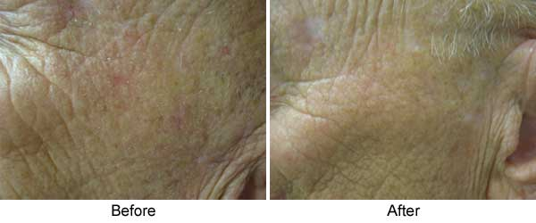 Photodynamic therapy (Levulan) with IPL temple area, one treatment