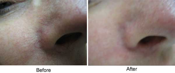 Vein treatment, nose vessels