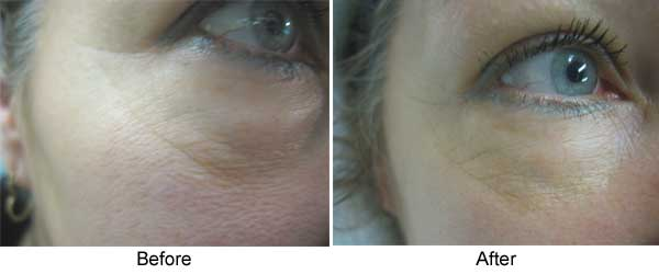 Titan for eyes two Treatments